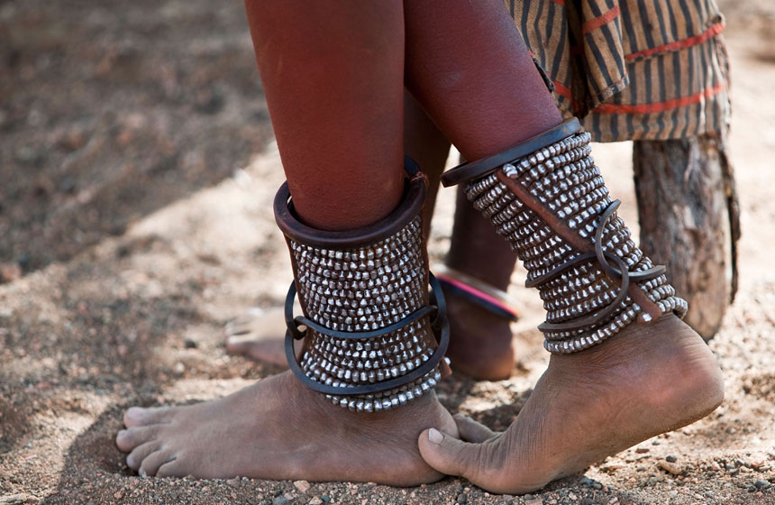 Ankle metal wear, Namibia